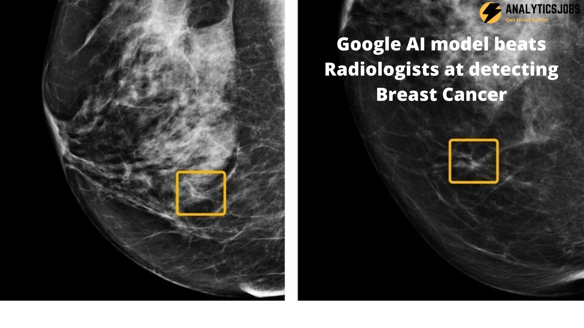 Google AI Model Detects Breast Cancer better than Radiologists